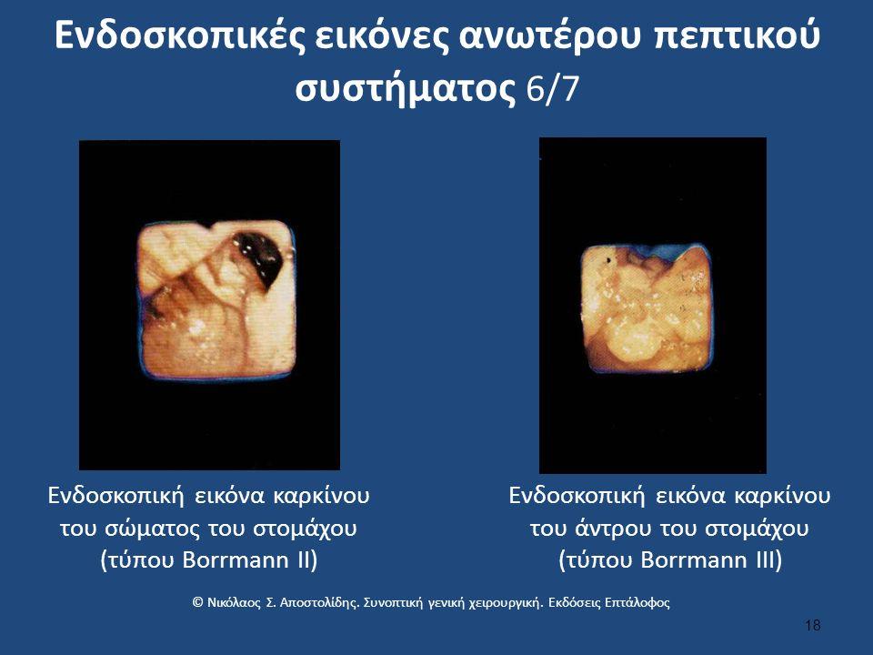 Ενδοσκοπικές εικόνες ανωτέρου πεπτικού συστήματος 6/7 18 Ενδοσκοπική εικόνα καρκίνου του σώματος του στομάχου (τύπου Borrmann II) Ενδοσκοπική εικόνα καρκίνου του άντρου του στομάχου (τύπου Borrmann ΙII) © Νικόλαος Σ.
