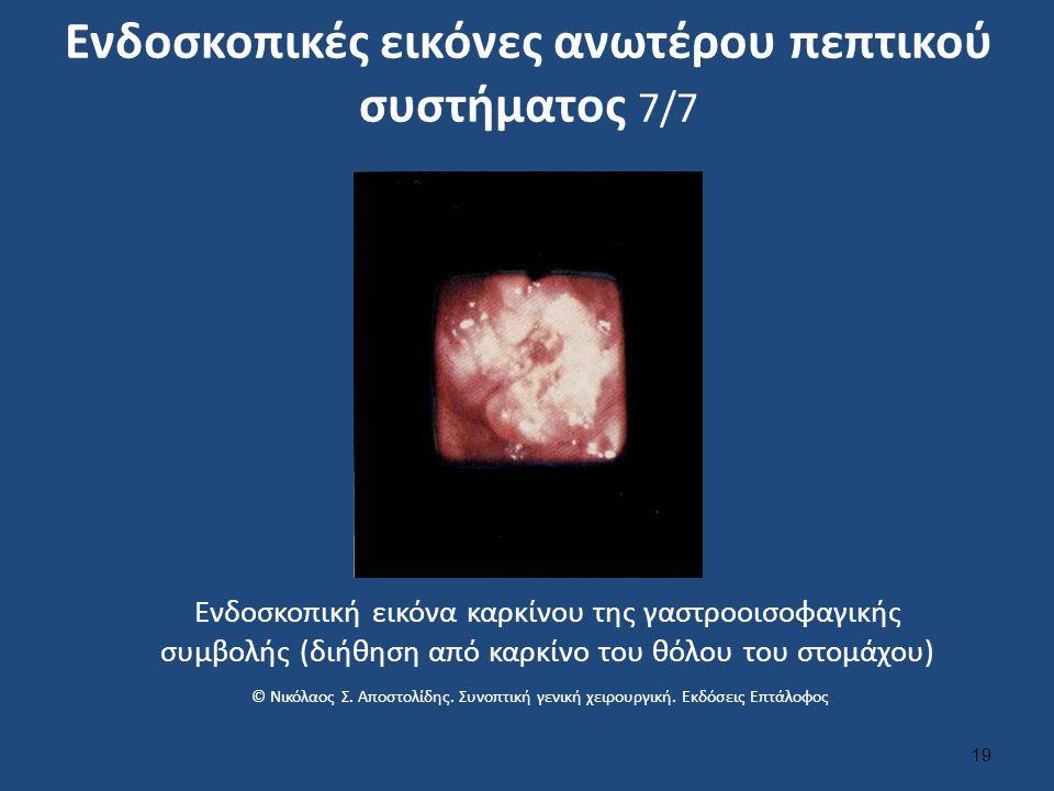 Ενδοσκοπικές εικόνες ανωτέρου πεπτικού συστήματος 7/7 19 Ενδοσκοπική εικόνα καρκίνου της γαστροοισοφαγικής συμβολής (διήθηση από καρκίνο του θόλου του στομάχου) © Νικόλαος Σ.
