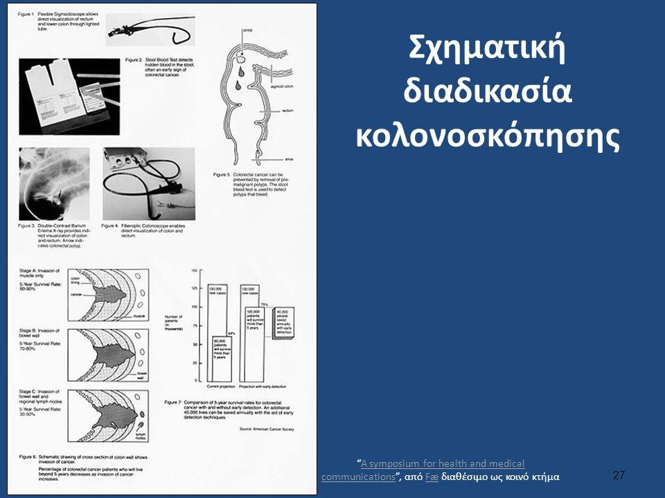 """Σχηματική διαδικασία κολονοσκόπησης 27 """"A symposium for health and medical communications"""", από Fæ διαθέσιμο ως κοινό κτήμαA symposium for health and"""