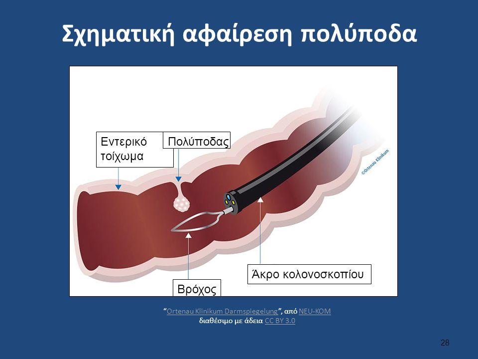 Σχηματική αφαίρεση πολύποδα 28 Βρόχος Άκρο κολονοσκοπίου Εντερικό τοίχωμα Πολύποδας Ortenau Klinikum Darmspiegelung , από NEU-KOM διαθέσιμο με άδεια CC BY 3.0Ortenau Klinikum DarmspiegelungNEU-KOMCC BY 3.0