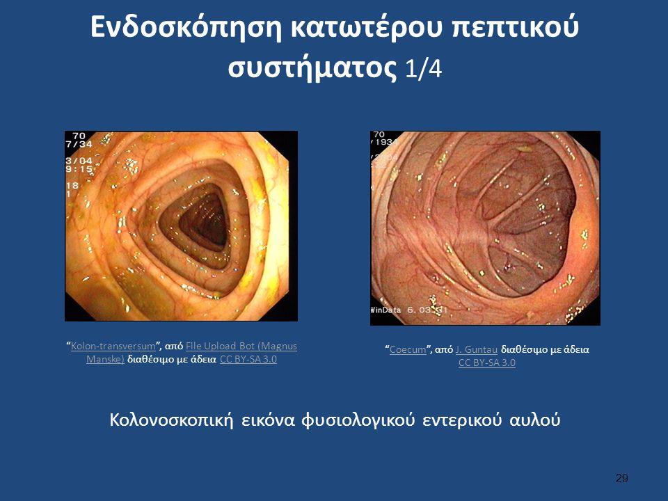 """Ενδοσκόπηση κατωτέρου πεπτικού συστήματος 1/4 29 Κολονοσκοπική εικόνα φυσιολογικού εντερικού αυλού """"Coecum"""", από J. Guntau διαθέσιμο με άδεια CC BY-SA"""
