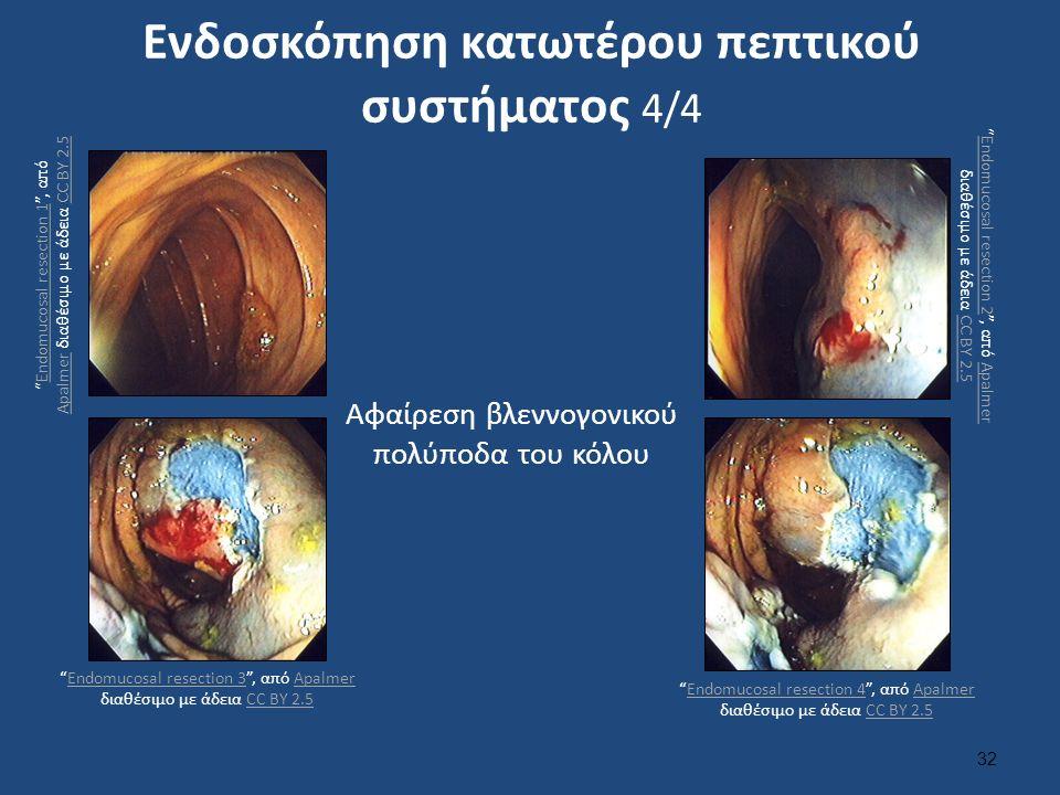 """Ενδοσκόπηση κατωτέρου πεπτικού συστήματος 4/4 32 Αφαίρεση βλεννογονικού πολύποδα του κόλου """"Endomucosal resection 1"""", από Apalmer διαθέσιμο με άδεια C"""