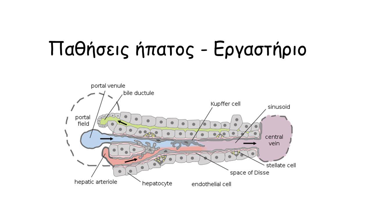 Η άλφα1-αντιθρυψίνη συγκεντρώνεται στο κυτταρόπλασμα των ηπατοκυττάρων ως ηωσινόφιλα σφαιρίδια θετικά στην ιστοχημική χρώση PAS διασταση.