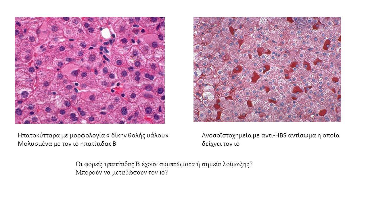 Oι φορείς ηπατίτιδας Β έχουν συμπτώματα ή σημεία λοίμωξης? Μπορούν να μεταδώσουν τον ιό? Hπατοκύτταρα με μορφολογία « δίκην θολής υάλου» Μολυσμένα με