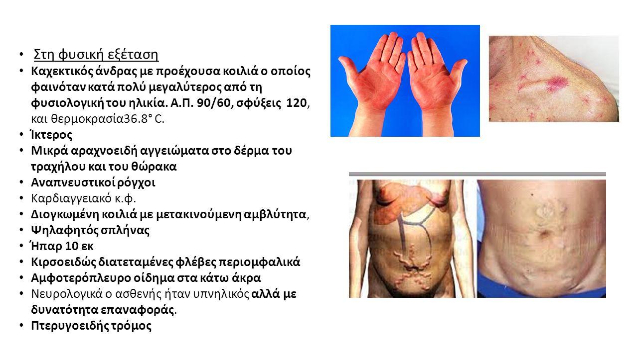 Στη φυσική εξέταση Καχεκτικός άνδρας με προέχουσα κοιλιά ο οποίος φαινόταν κατά πολύ μεγαλύτερος από τη φυσιολογική του ηλικία. Α.Π. 90/60, σφύξεις 12