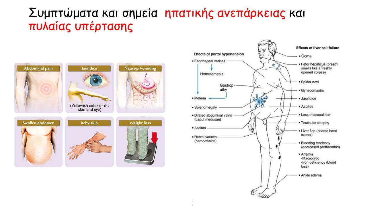 Συμπτώματα και σημεία ηπατικής ανεπάρκειας και πυλαίας υπέρτασης