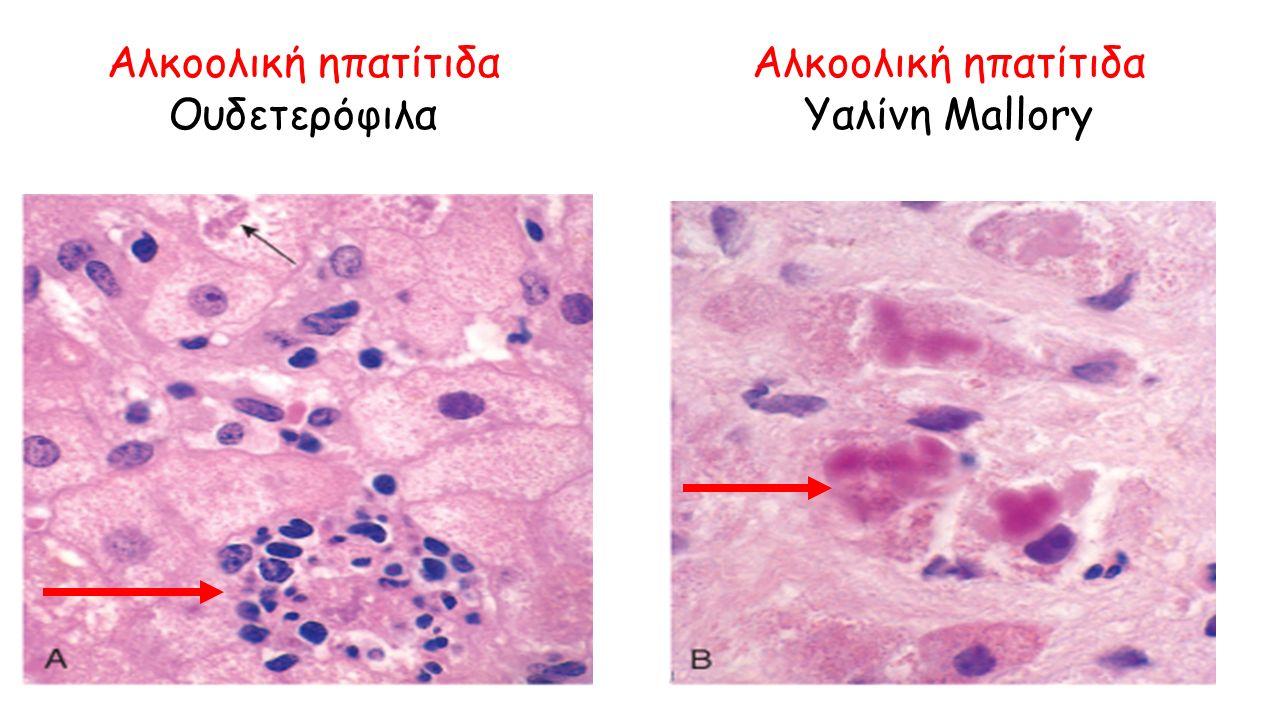 Αλκοολική ηπατίτιδα Ουδετερόφιλα Αλκοολική ηπατίτιδα Υαλίνη Mallory