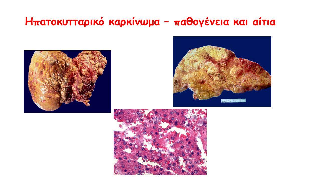 Ηπατοκυτταρικό καρκίνωμα – παθογένεια και αίτια