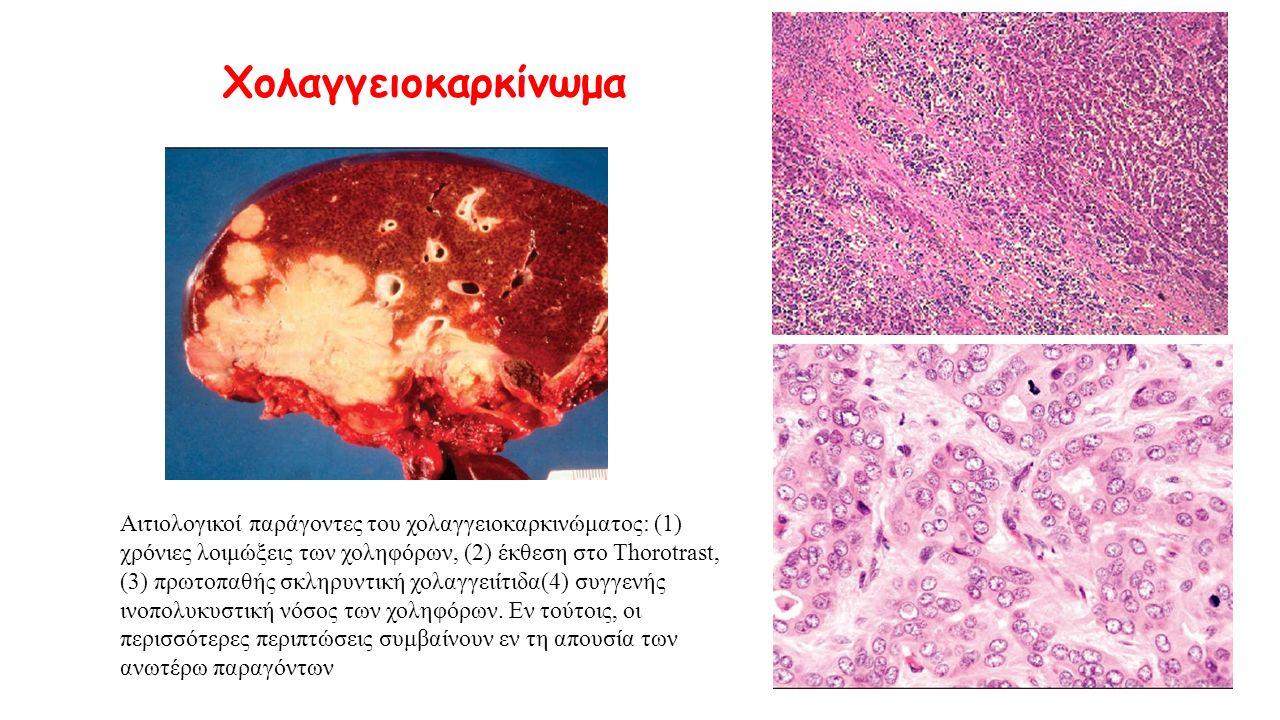 Αιτιολογικοί παράγοντες του χολαγγειοκαρκινώματος: (1) χρόνιες λοιμώξεις των χοληφόρων, (2) έκθεση στο Thorotrast, (3) πρωτοπαθής σκληρυντική χολαγγει