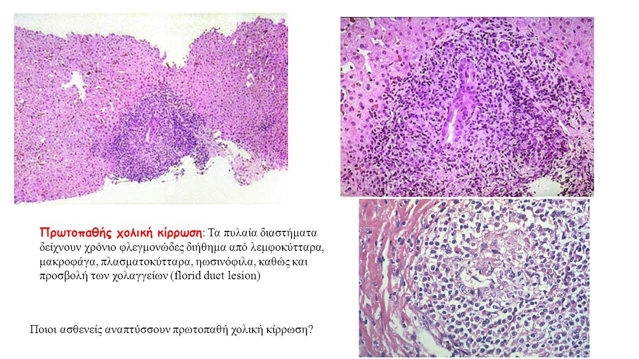 Πρωτοπαθής χολική κίρρωση : Τα πυλαία διαστήματα δείχνουν χρόνιο φλεγμονώδες διήθημα από λεμφοκύτταρα, μακροφάγα, πλασματοκύτταρα, ηωσινόφιλα, καθώς κ