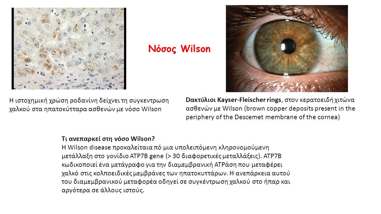 Η ιστοχημική χρώση ροδανίνη δείχνει τη συγκεντρωση χαλκού στα ηπατοκύτταρα ασθενών με νόσο Wilson Tι ανεπαρκεί στη νόσο Wilson? H Wilson disease προκα