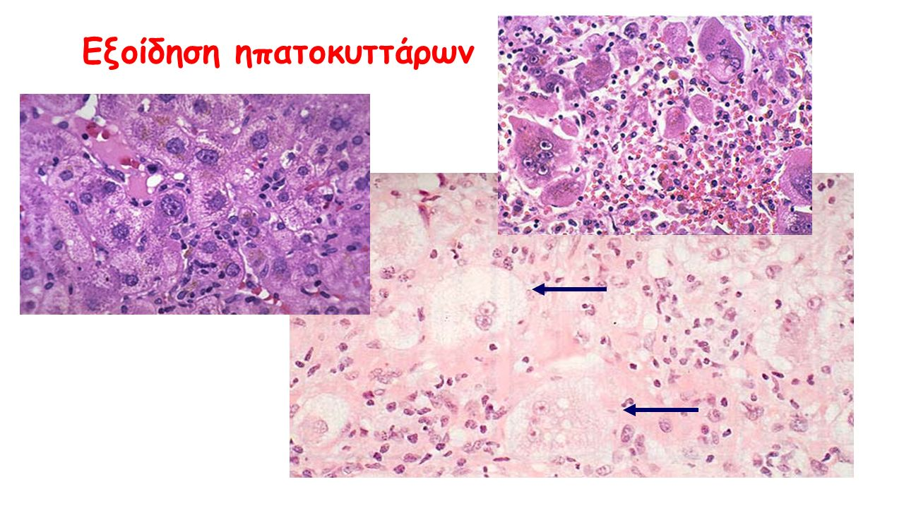 Εξοίδηση ηπατοκυττάρων