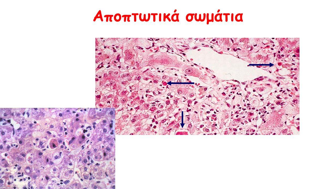Χρόνια ηπατίτιδα C (φλεγμονή στα πυλαία με σχηματισμό λεμφοζιδιακών αθροίσεων – λιπώδης διήθηση-βλάβη στα χολαγγεία)