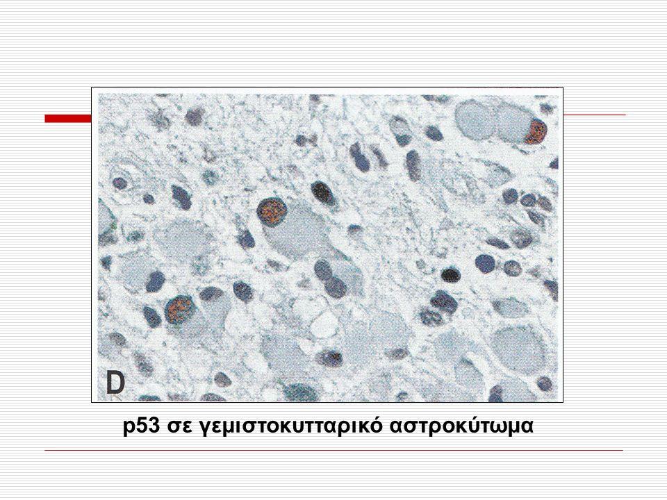 Εικ. 1.19D, σελ. 28 p53 σε γεμιστοκυτταρικό αστροκύτωμα