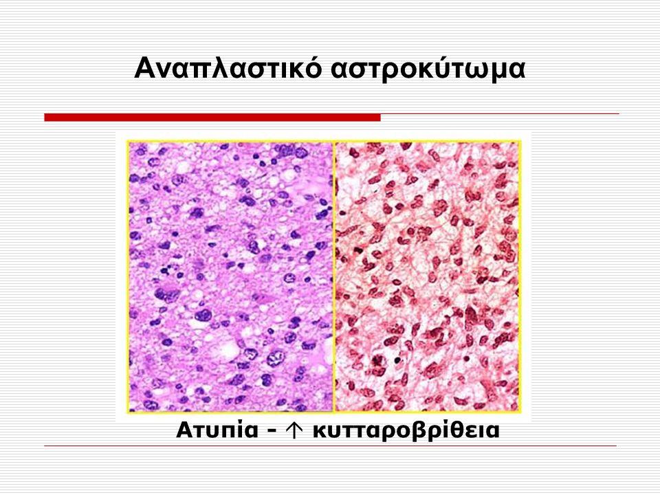 Αναπλαστικό αστροκύτωμα Ατυπία -  κυτταροβρίθεια
