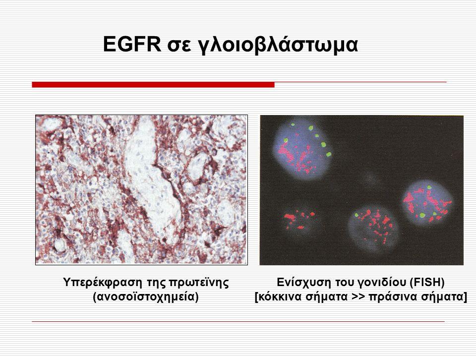 1.33Α, σελ. 39 1.37 σελ. 43 EGFR σε γλοιοβλάστωμα Υπερέκφραση της πρωτεϊνης (ανοσοϊστοχημεία) Ενίσχυση του γονιδίου (FISH) [κόκκινα σήματα >> πράσινα