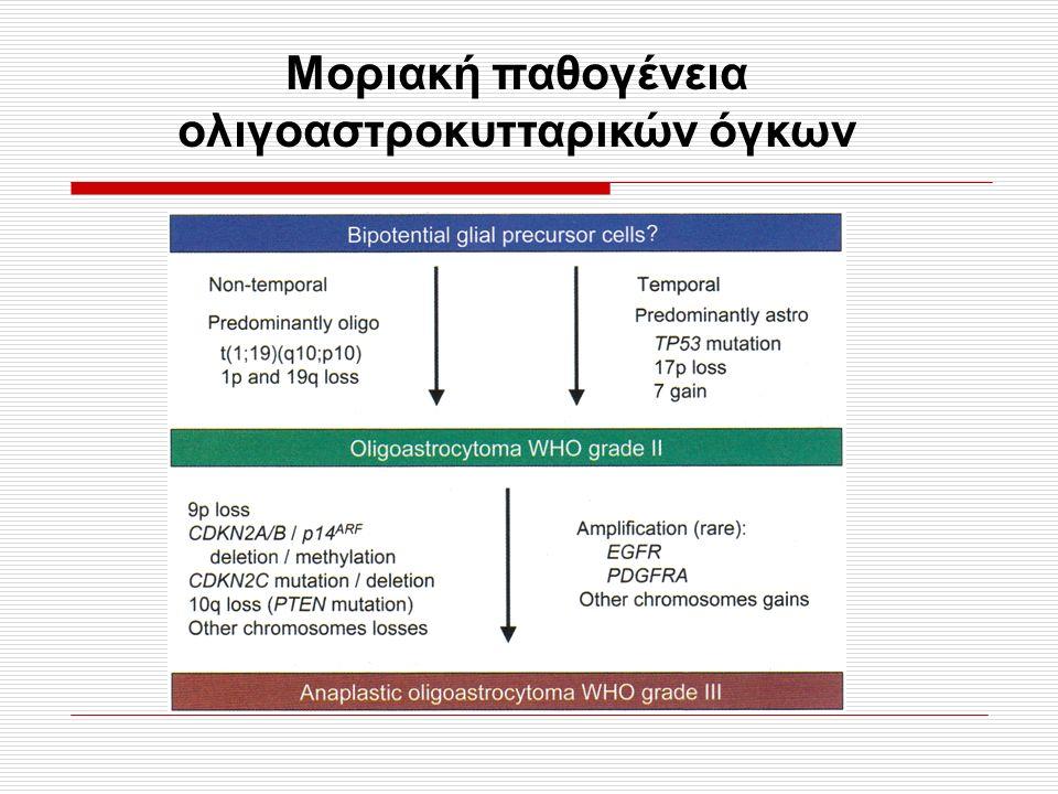 Εικ. 2.11, σελ. 65 Μοριακή παθογένεια ολιγοαστροκυτταρικών όγκων