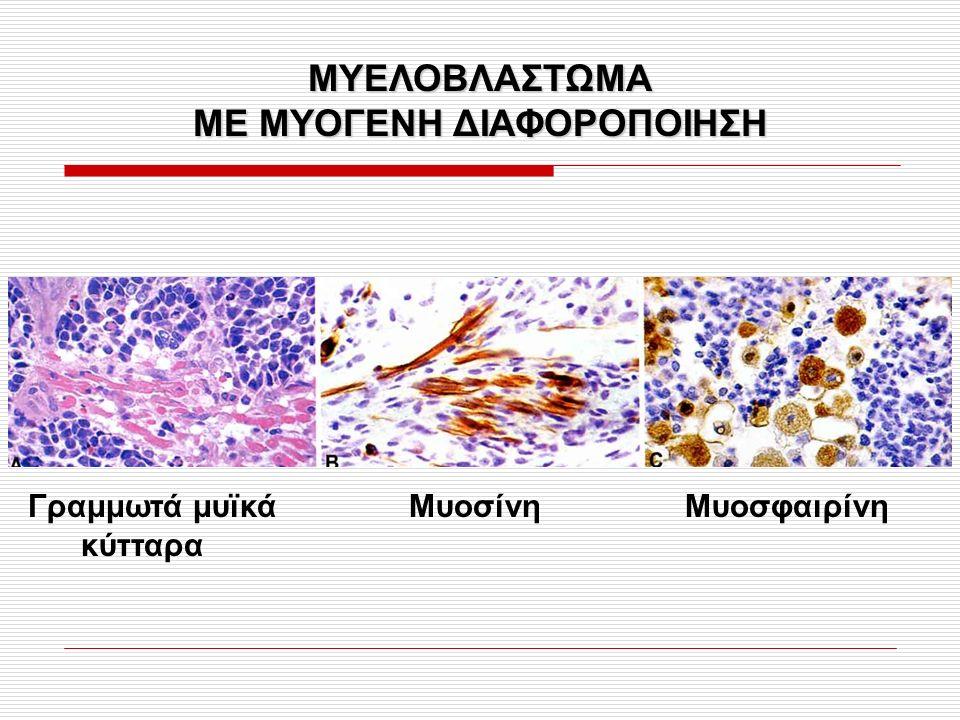 ΜΥΕΛΟΒΛΑΣΤΩΜΑ ΜΕ ΜΥΟΓΕΝΗ ΔΙΑΦΟΡΟΠΟΙΗΣΗ Γραμμωτά μυϊκά Μυοσίνη Μυοσφαιρίνη κύτταρα