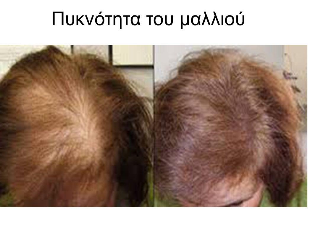 Πυκνότητα του μαλλιού