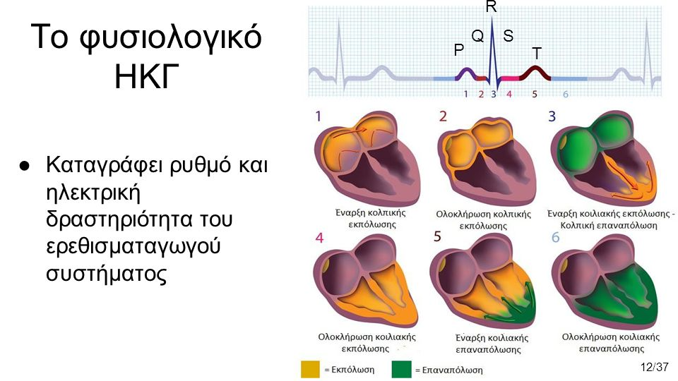 Το φυσιολογικό ΗΚΓ ●Καταγράφει ρυθμό και ηλεκτρική δραστηριότητα του ερεθισματαγωγού συστήματος 12/37 P R QS T
