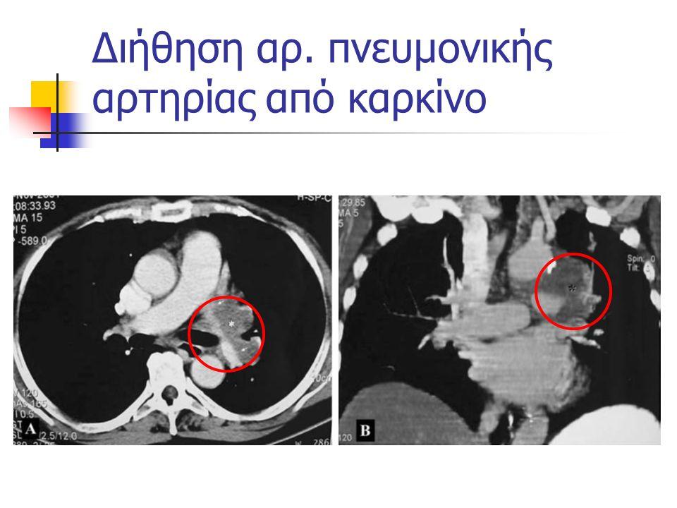 Διήθηση αρ. πνευμονικής αρτηρίας από καρκίνο
