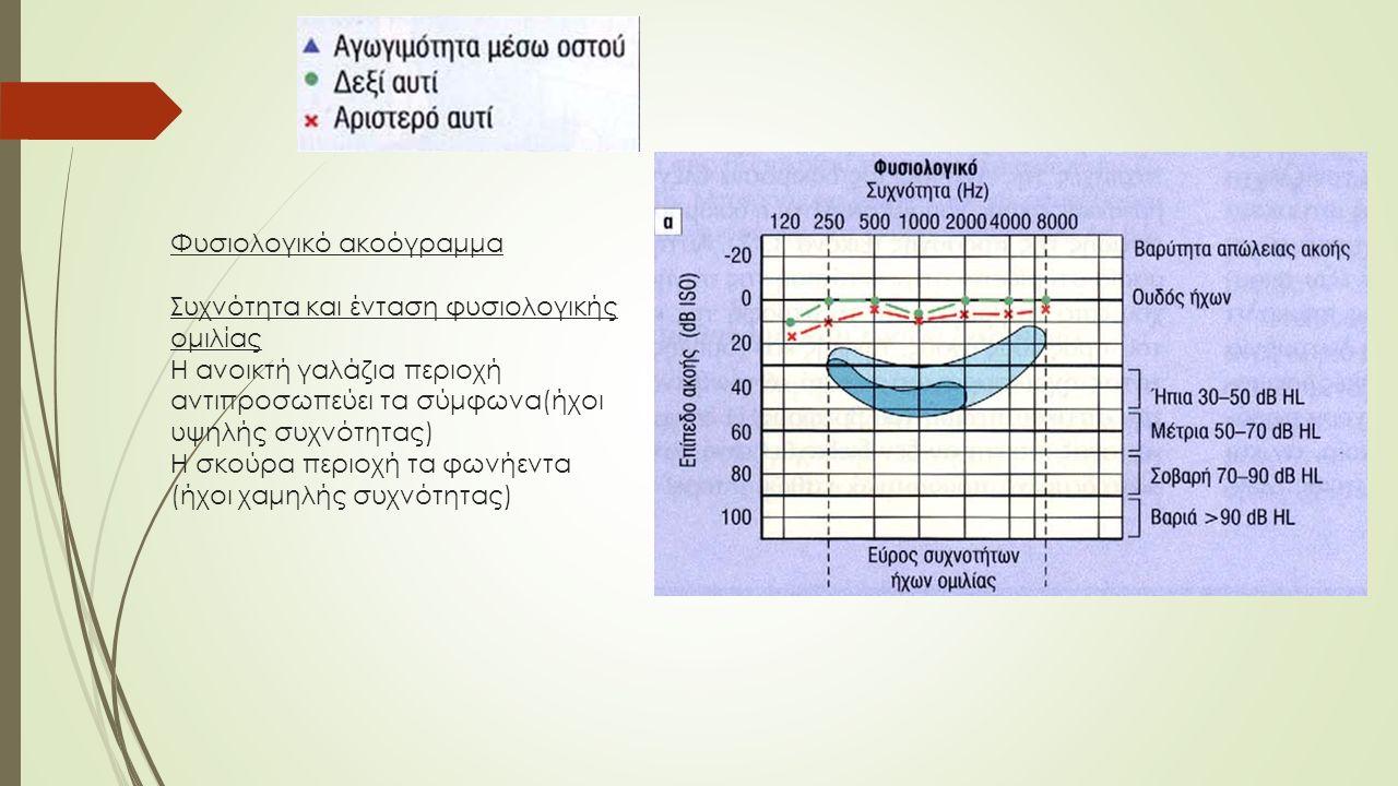 Φυσιολογικό ακοόγραμμα Συχνότητα και ένταση φυσιολογικής ομιλίας Η ανοικτή γαλάζια περιοχή αντιπροσωπεύει τα σύμφωνα(ήχοι υψηλής συχνότητας) Η σκούρα περιοχή τα φωνήεντα (ήχοι χαμηλής συχνότητας)