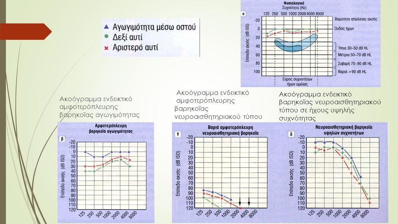 Ακοόγραμμα ενδεικτικό αμφοτερόπλευρης βαρηκοϊας νευροαισθητηριακού τύπου Ακοόγραμμα ενδεικτικό αμφοτερόπλευρης βαρηκοϊας αγωγιμότητας Ακοόγραμμα ενδεικτικό βαρηκοϊας νευροαισθητηριακού τύπου σε ήχους υψηλής συχνότητας