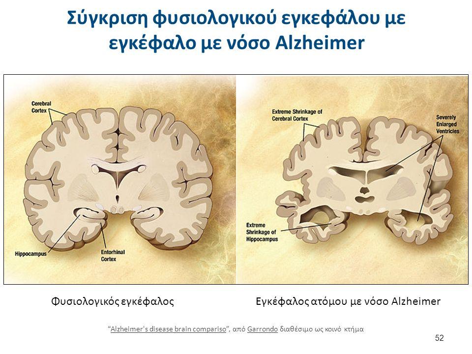 Σύγκριση φυσιολογικού εγκεφάλου με εγκέφαλο με νόσο Alzheimer 52 Φυσιολογικός εγκέφαλοςΕγκέφαλος ατόμου με νόσο Alzheimer Alzheimer s disease brain compariso , από Garrondo διαθέσιμο ως κοινό κτήμαAlzheimer s disease brain comparisoGarrondo