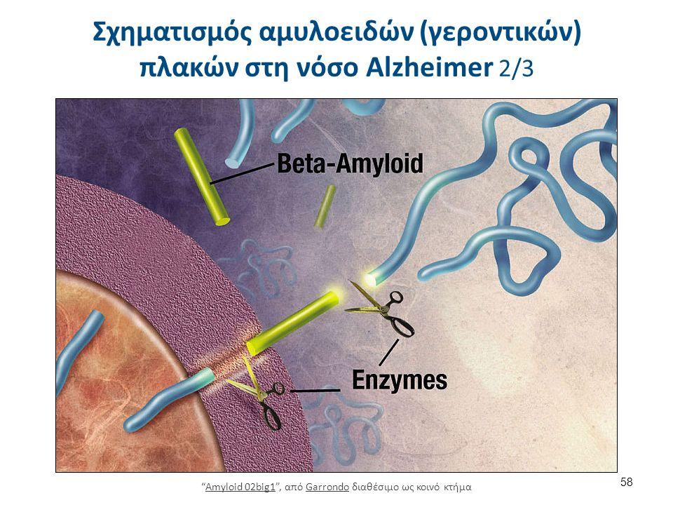 Σχηματισμός αμυλοειδών (γεροντικών) πλακών στη νόσο Alzheimer 2/3 58 Amyloid 02big1 , από Garrondo διαθέσιμο ως κοινό κτήμαAmyloid 02big1Garrondo