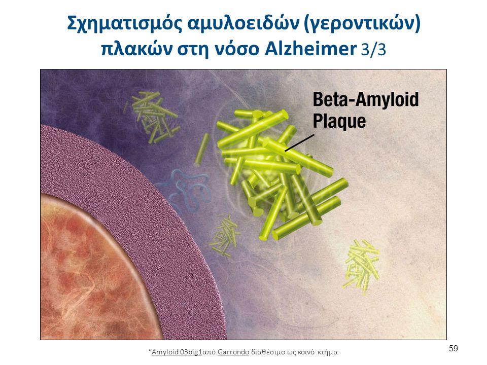 Σχηματισμός αμυλοειδών (γεροντικών) πλακών στη νόσο Alzheimer 3/3 59 Amyloid 03big1από Garrondo διαθέσιμο ως κοινό κτήμαAmyloid 03big1Garrondo