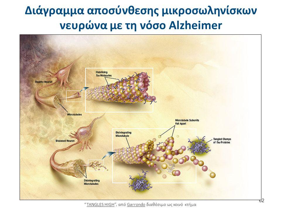Διάγραμμα αποσύνθεσης μικροσωληνίσκων νευρώνα με τη νόσο Alzheimer 62 TANGLES HIGH , από Garrondo διαθέσιμο ως κοινό κτήμαTANGLES HIGHGarrondo