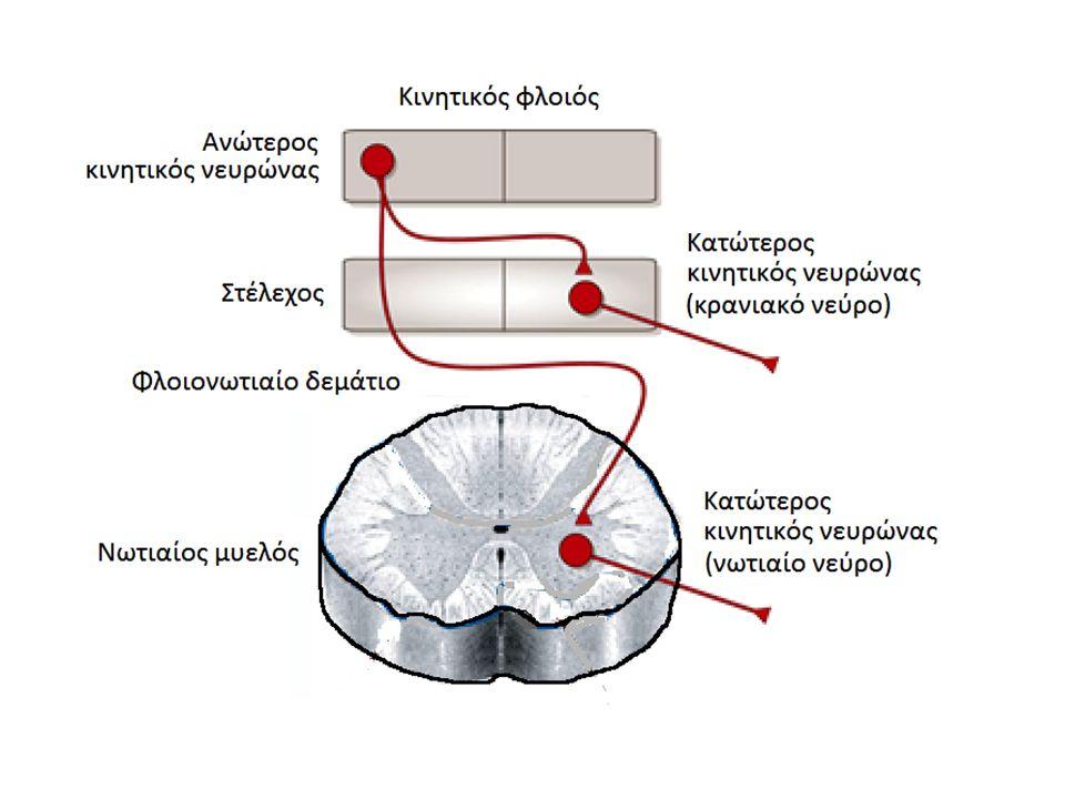 Μεμονωμένη εκφύλιση του κεντρικού κινητικού νευρώνα Μεμονωμένη εκφύλιση του περιφερικού κινητικού νευρώνα Συνδυασμένη εκφύλιση του κεντρικού και περιφερικού κινητικού νευρώνα