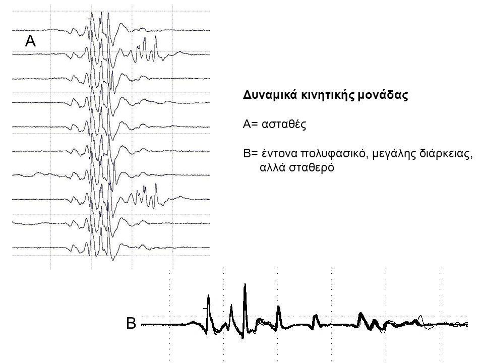 Α Β Δυναμικά κινητικής μονάδας Α= ασταθές Β= έντονα πολυφασικό, μεγάλης διάρκειας, αλλά σταθερό