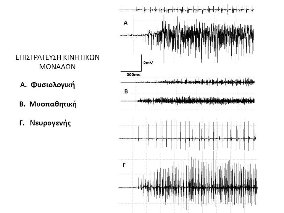 ΕΠΙΣΤΡΑΤΕΥΣΗ ΚΙΝΗΤΙΚΩΝ ΜΟΝΑΔΩΝ Α. Φυσιολογική Β. Μυοπαθητική Γ. Νευρογενής