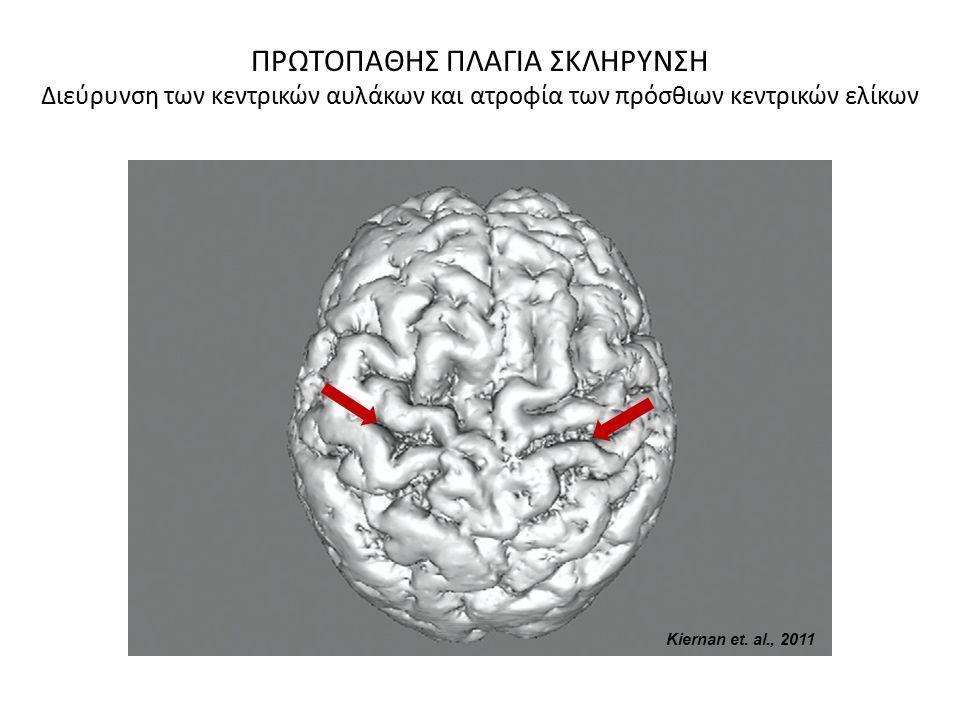 Kiernan et. al., 2011 ΠΡΩΤΟΠΑΘΗΣ ΠΛΑΓΙΑ ΣΚΛΗΡΥΝΣΗ Διεύρυνση των κεντρικών αυλάκων και ατροφία των πρόσθιων κεντρικών ελίκων