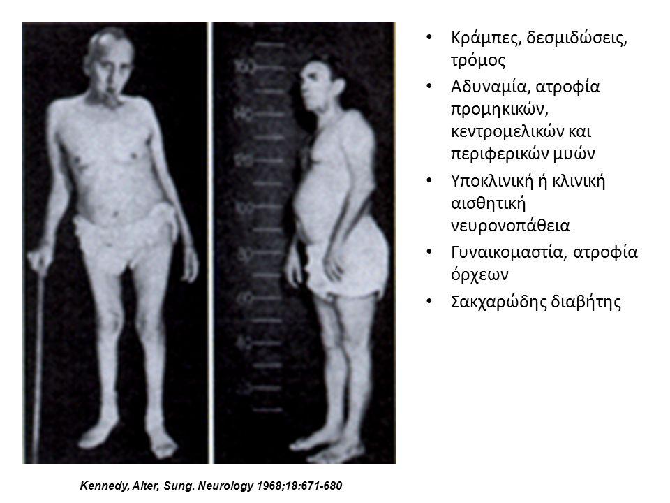 Kennedy, Alter, Sung. Neurology 1968;18:671-680 Κράμπες, δεσμιδώσεις, τρόμος Αδυναμία, ατροφία προμηκικών, κεντρομελικών και περιφερικών μυών Υποκλινι