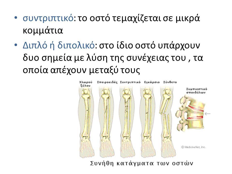 συντριπτικό: το οστό τεμαχίζεται σε μικρά κομμάτια Διπλό ή διπολικό: στο ίδιο οστό υπάρχουν δυο σημεία με λύση της συνέχειας του, τα οποία απέχουν μετ