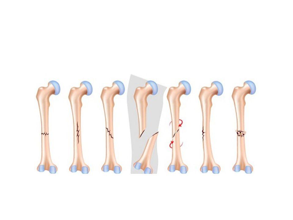 Ανάλογα με το σημείο του οστού: Ανάλογα με το σημείο του οστού: o Διάφυση o Επίφυση o Άνω τριτημόριο o Μεσότητας o Κάτω τριτημόριο o Ενδοαρθρικό o εξωαρθρικό