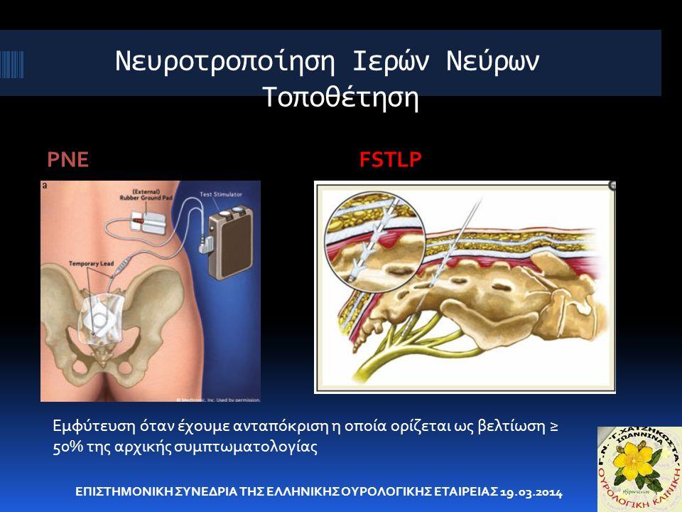 Νευροτροποίηση Ιερών Νεύρων Τοποθέτηση PNEFSTLP ΕΠΙΣΤΗΜΟΝΙΚΗ ΣΥΝΕΔΡΙΑ ΤΗΣ ΕΛΛΗΝΙΚΗΣ ΟΥΡΟΛΟΓΙΚΗΣ ΕΤΑΙΡΕΙΑΣ 19.03.2014 Εμφύτευση όταν έχουμε ανταπόκριση η οποία ορίζεται ως βελτίωση ≥ 50% της αρχικής συμπτωματολογίας
