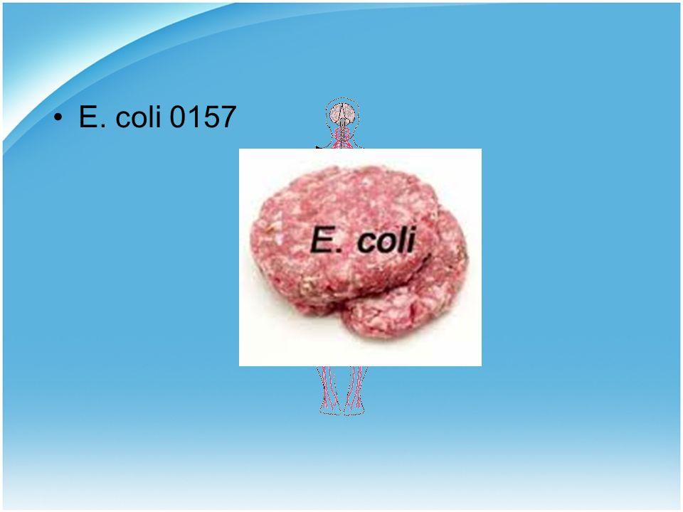 15 Ε. coli 0157