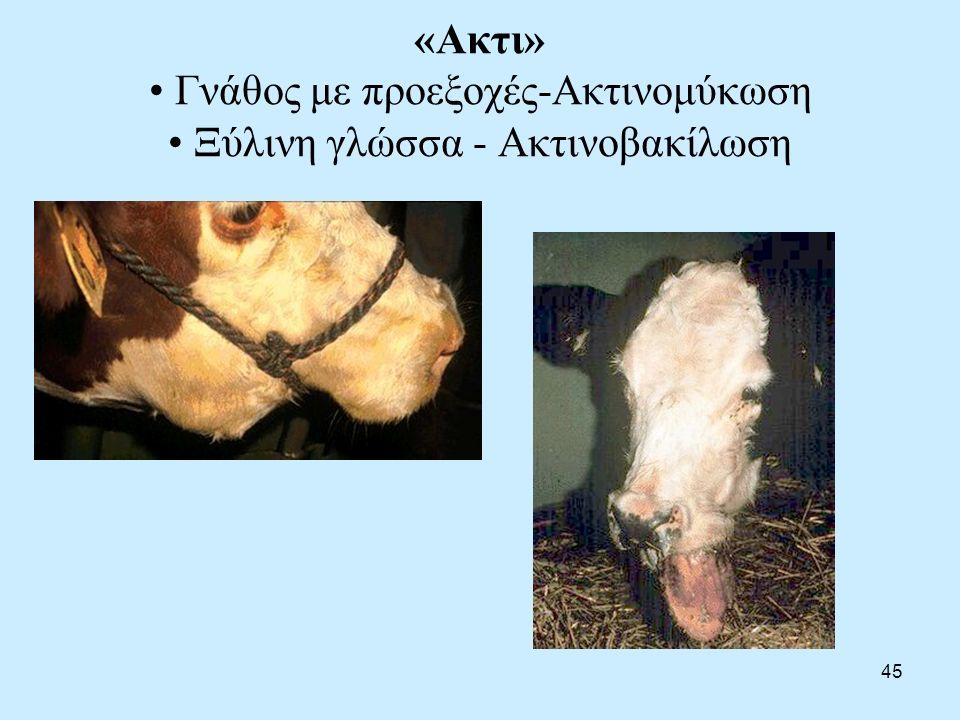 45 «Ακτι» Γνάθος με προεξοχές-Ακτινομύκωση Ξύλινη γλώσσα - Ακτινοβακίλωση