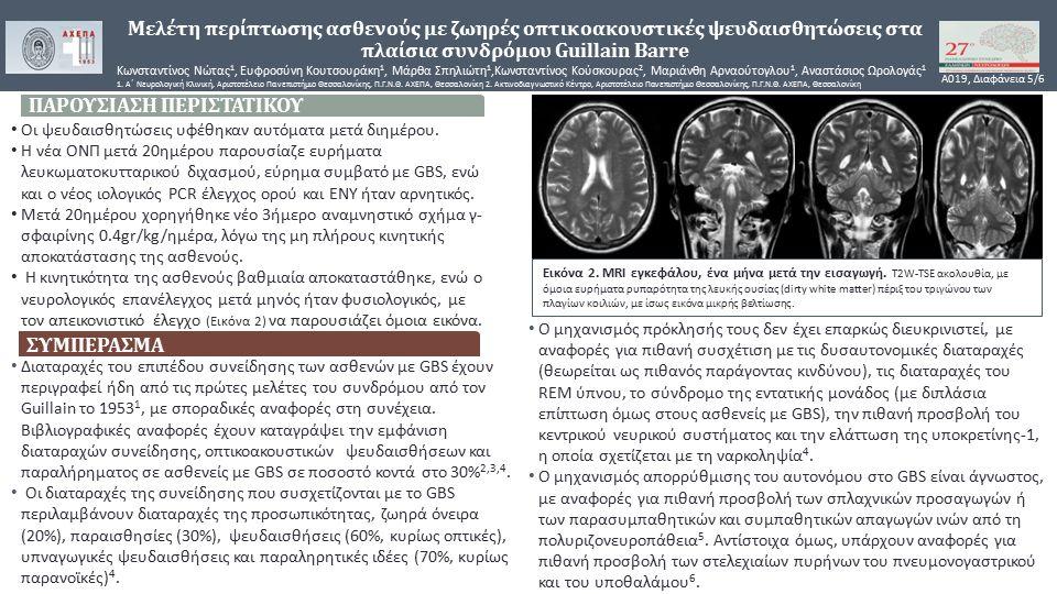 Μελέτη περίπτωσης ασθενούς με ζωηρές οπτικοακουστικές ψευδαισθητώσεις στα πλαίσια συνδρόμου Guillain Barre Κωνσταντίνος Νώτας 1, Ευφροσύνη Κουτσουράκη