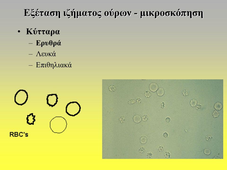Εξέταση ιζήματος ούρων - μικροσκόπηση Κύτταρα –Ερυθρά –Λευκά –Επιθηλιακά