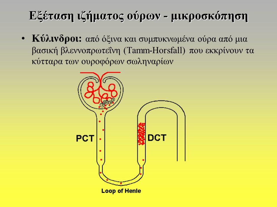 Εξέταση ιζήματος ούρων - μικροσκόπηση Κύλινδροι: από όξινα και συμπυκνωμένα ούρα από μια βασική βλεννοπρωτεΐνη (Tamm-Horsfall) που εκκρίνουν τα κύτταρα των ουροφόρων σωληναρίων