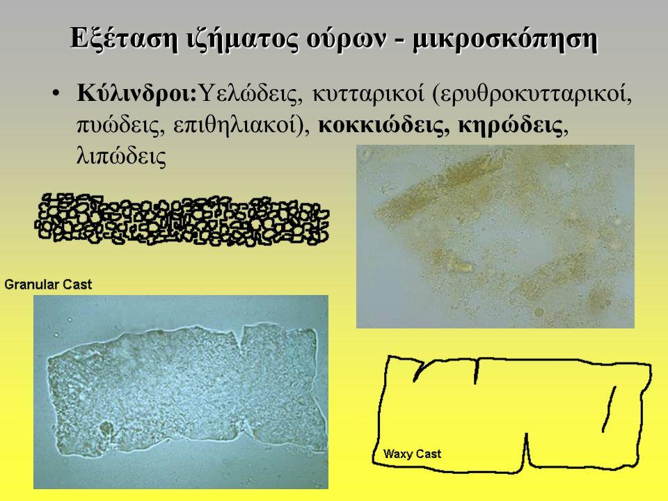 Εξέταση ιζήματος ούρων - μικροσκόπηση Κύλινδροι:Υελώδεις, κυτταρικοί (ερυθροκυτταρικοί, πυώδεις, επιθηλιακοί), κοκκιώδεις, κηρώδεις, λιπώδεις