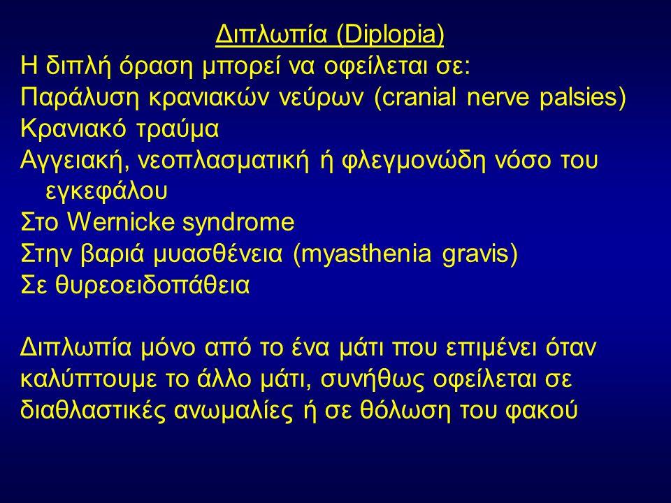 Διπλωπία (Diplopia) Η διπλή όραση μπορεί να οφείλεται σε: Παράλυση κρανιακών νεύρων (cranial nerve palsies) Κρανιακό τραύμα Αγγειακή, νεοπλασματική ή φλεγμονώδη νόσο του εγκεφάλου Στο Wernicke syndrome Στην βαριά μυασθένεια (myasthenia gravis) Σε θυρεοειδοπάθεια Διπλωπία μόνο από το ένα μάτι που επιμένει όταν καλύπτουμε το άλλο μάτι, συνήθως οφείλεται σε διαθλαστικές ανωμαλίες ή σε θόλωση του φακού