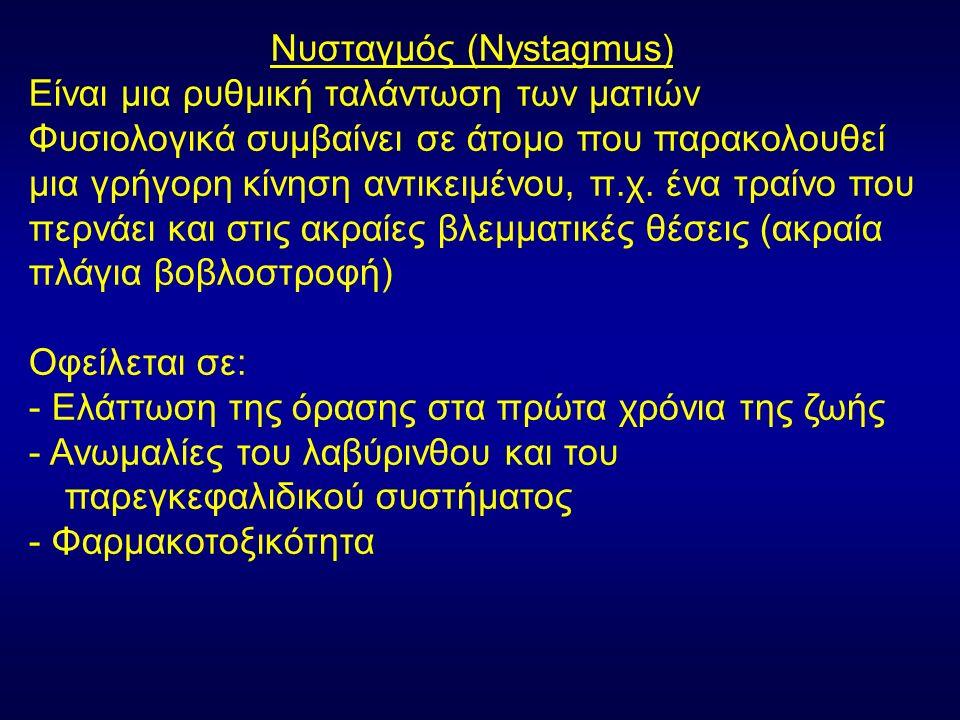 Νυσταγμός (Nystagmus) Είναι μια ρυθμική ταλάντωση των ματιών Φυσιολογικά συμβαίνει σε άτομο που παρακολουθεί μια γρήγορη κίνηση αντικειμένου, π.χ.