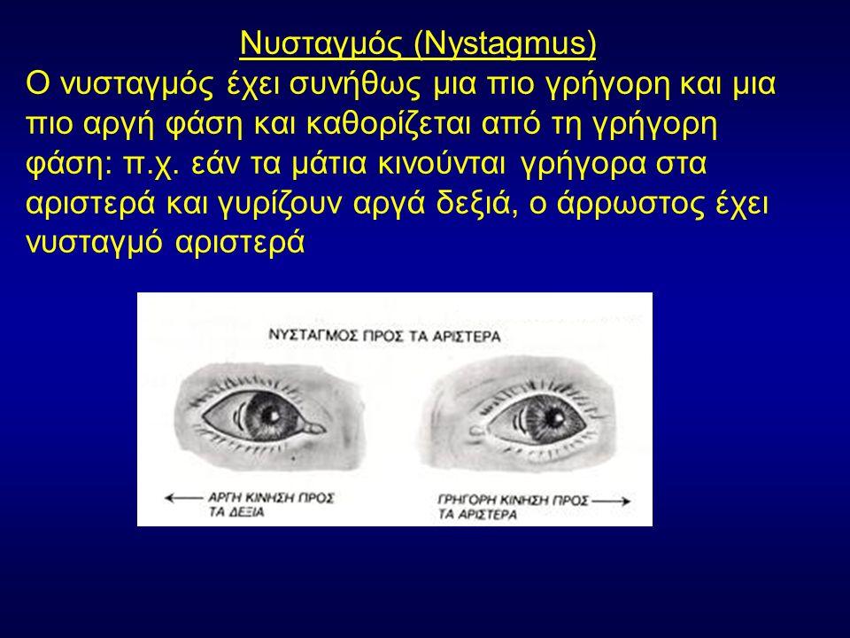 Νυσταγμός (Nystagmus) Ο νυσταγμός έχει συνήθως μια πιο γρήγορη και μια πιο αργή φάση και καθορίζεται από τη γρήγορη φάση: π.χ.