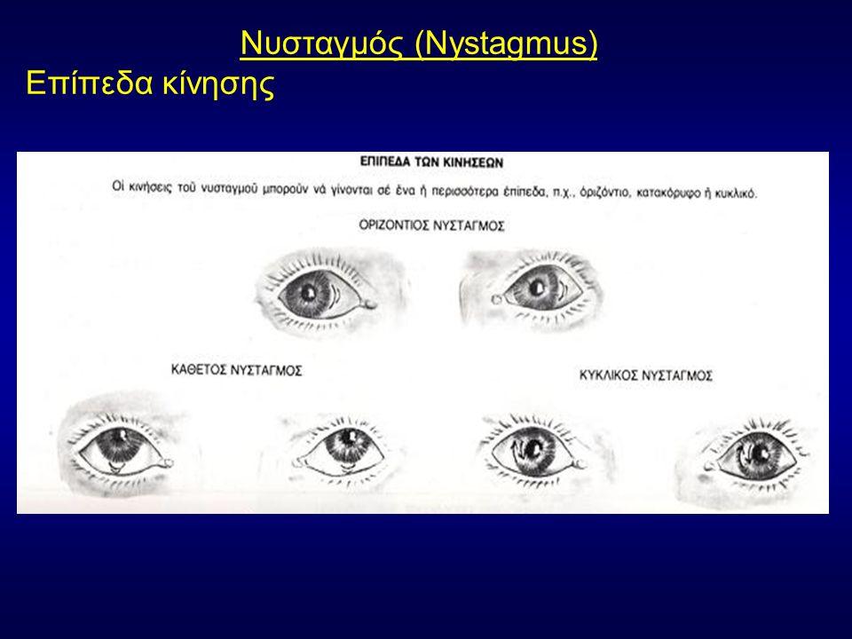Νυσταγμός (Nystagmus) Επίπεδα κίνησης