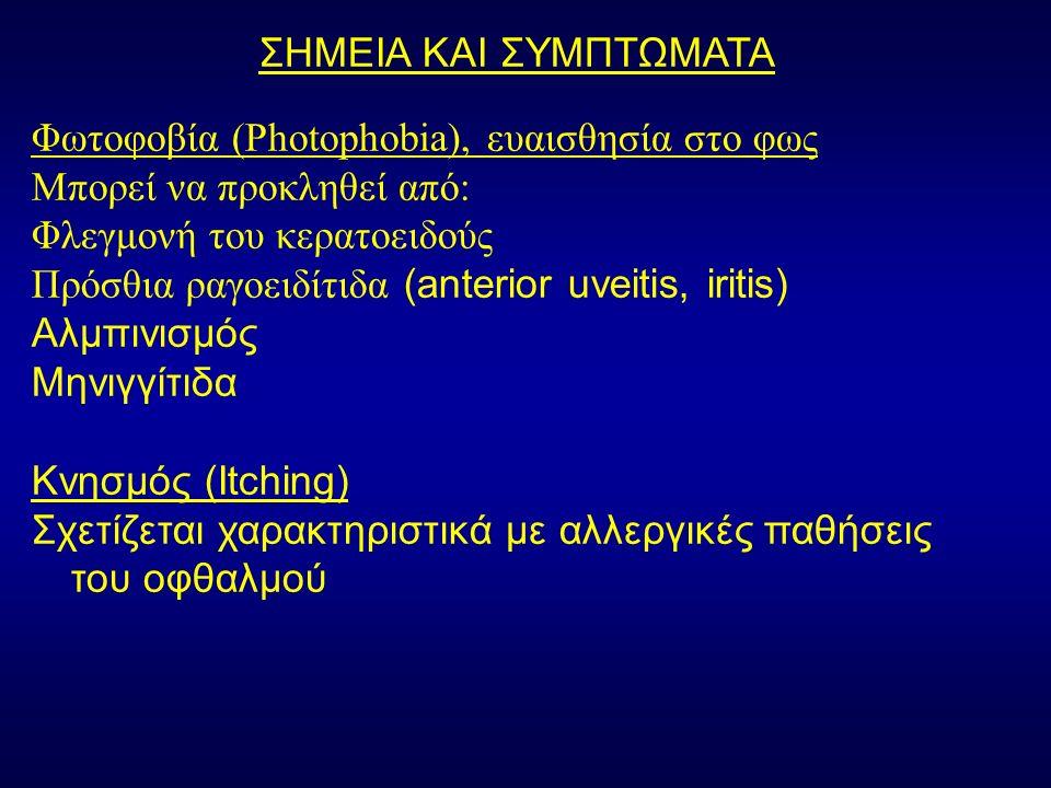 ΣΗΜΕΙΑ ΚΑΙ ΣΥΜΠΤΩΜΑΤΑ Φωτοφοβία (Photophobia), ευαισθησία στο φως Μπορεί να προκληθεί από: Φλεγμονή του κερατοειδούς Πρόσθια ραγοειδίτιδα (anterior uveitis, iritis) Αλμπινισμός Μηνιγγίτιδα Κνησμός (Itching) Σχετίζεται χαρακτηριστικά με αλλεργικές παθήσεις του οφθαλμού